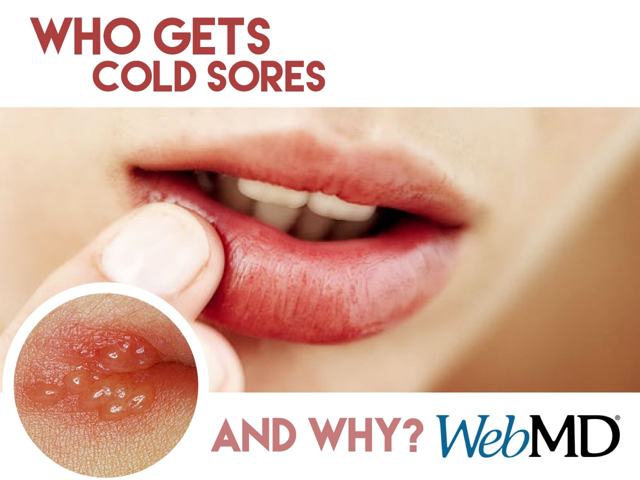Slideshow Treating And Preventing Cold Sores Cold Sore Blister