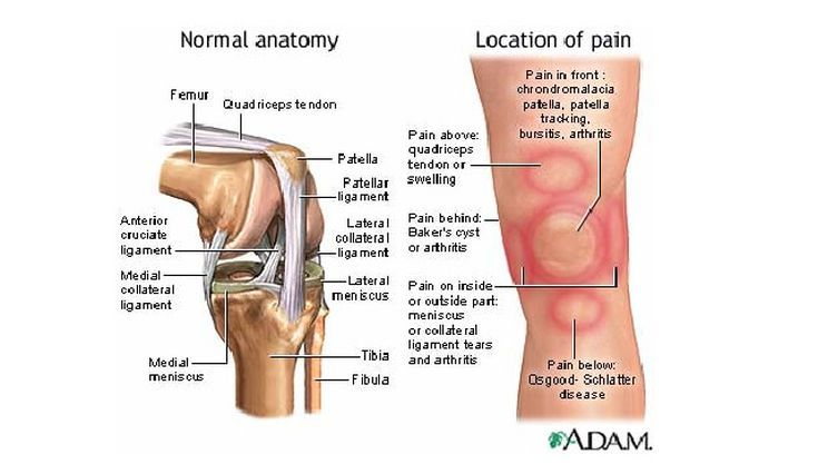 What Is the Patellofemoral Joint? | Cool stuff | Pinterest