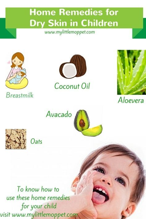 5 Amazing Home Remedies For Dry Skin In Children With Images