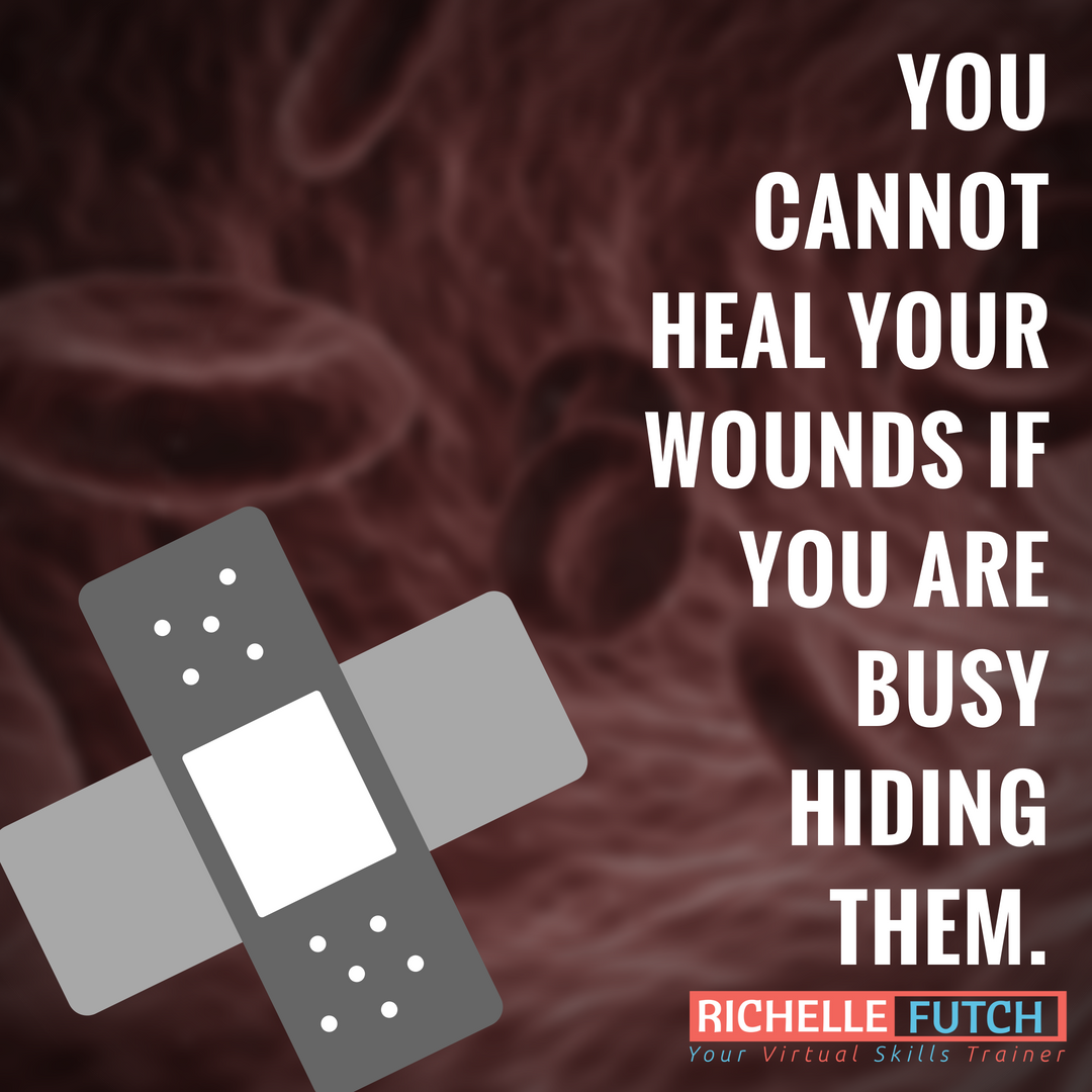 You Cannot Heal Your Wounds If You Are Busy Hiding Them
