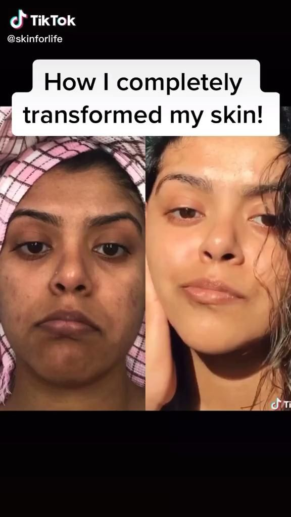 Photo of How to get clear skin fast!