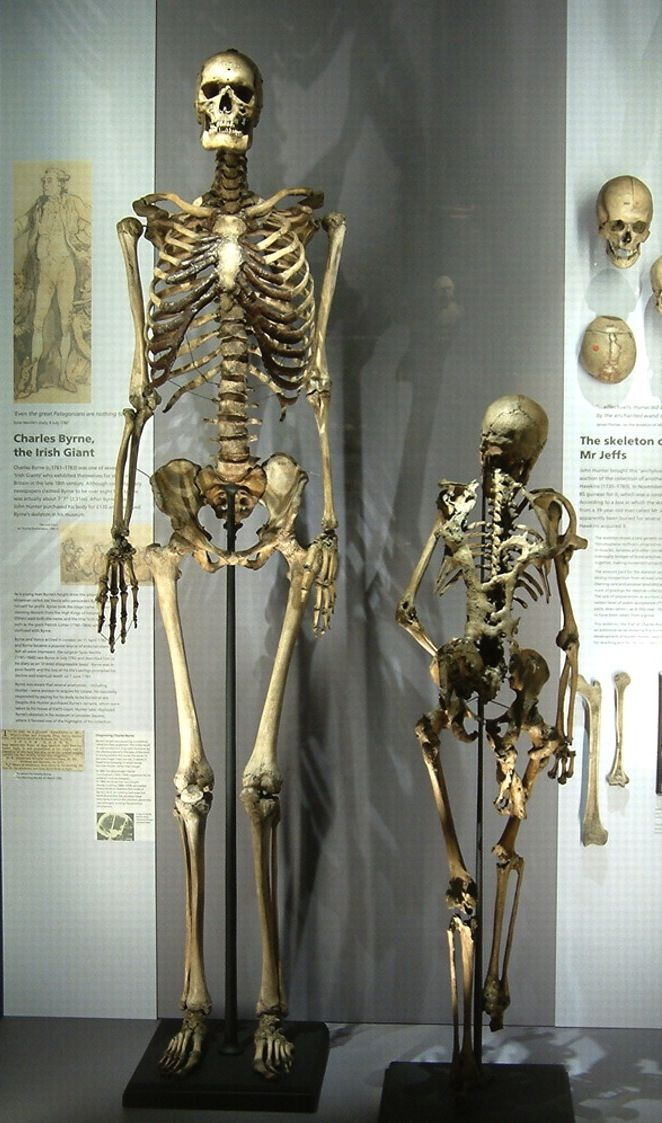"the skeleton of charles byrne, the ""irish giant"", on display at, Skeleton"