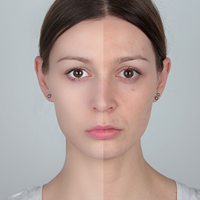 How to Hide All Your Skin Imperfections Using This