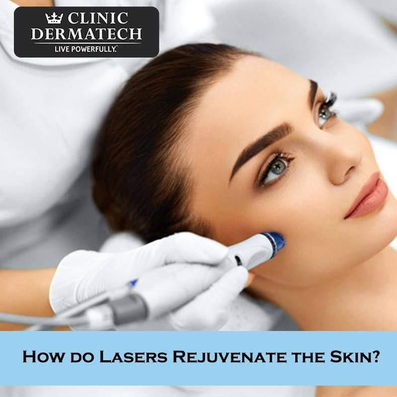 How Do Lasers Reduce Wrinkles On The Face If You D Like To Learn More About Lasers And How It Can Help You Re Skin Clinic Aesthetic Medicine Laser Treatment