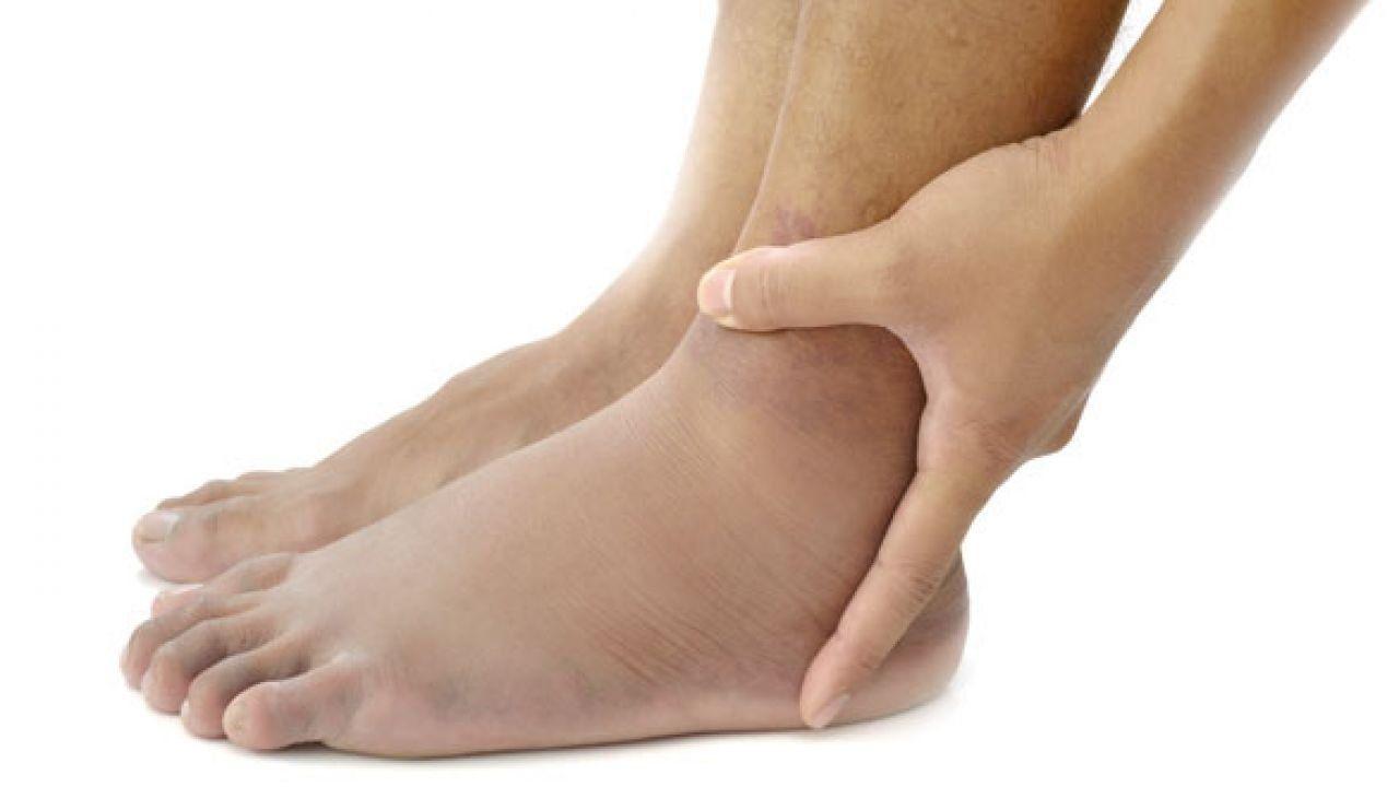 أعراض الأملاح في الجسم Swollen Legs Swollen Feet Body