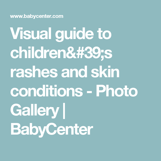 How to tell if your child's rash is serious. A great guide to.