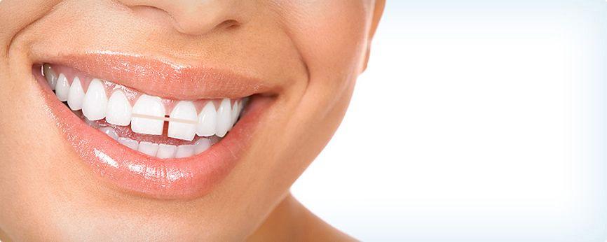 Teeth gap bands close gapped teeth gap teeth dental