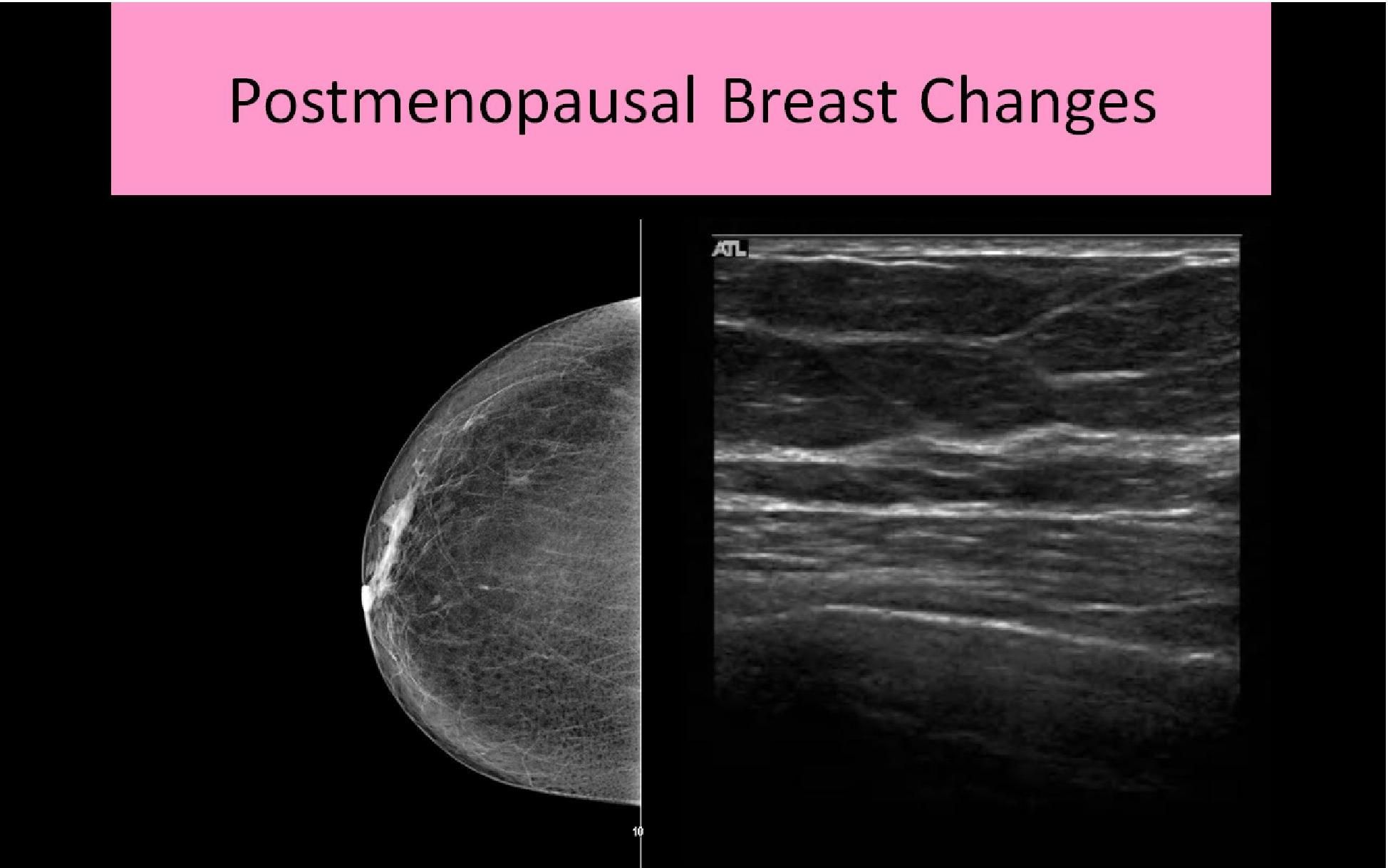WK 2 BREAST BREAST ANATOMY AND PHYSIOLOGY - Ultrasound Registry ...