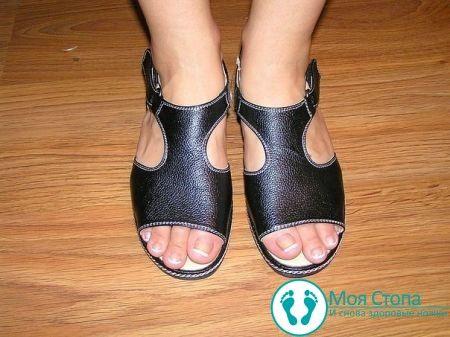 Выбор и приобретение ортопедической обуви при косолапости у ребенка