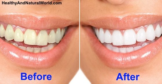 Easy 2-Ingredient Paste to Get Rid of Yellow Teeth At Home In Minutes #howtowhitenyourteeth