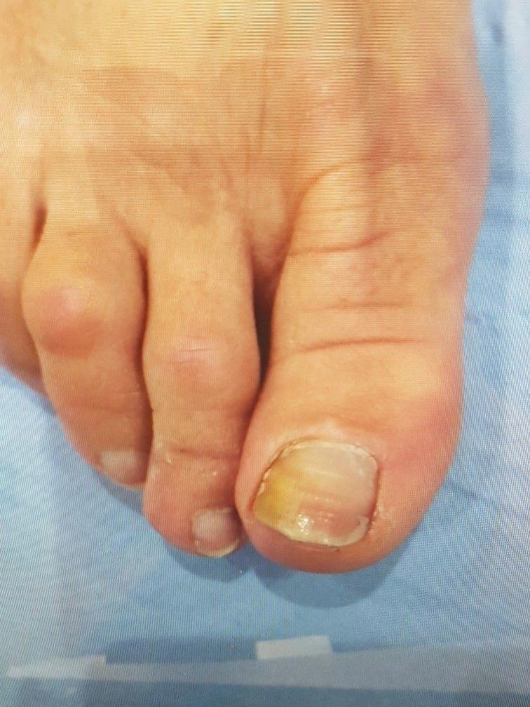 Fungal nail infection Marion yau #fungusundertoenailcure ...