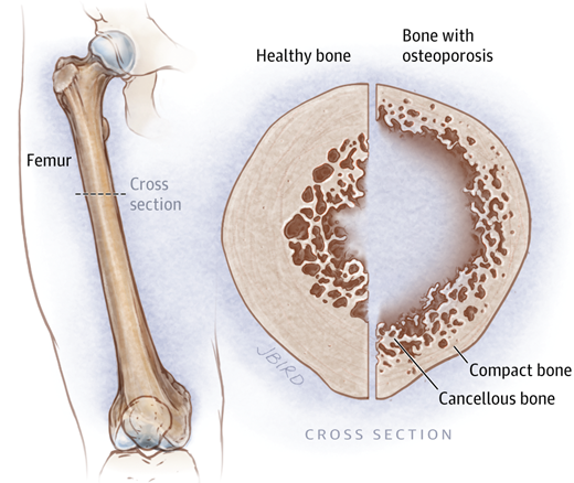 19++ What part of the bone does osteoporosis affect info