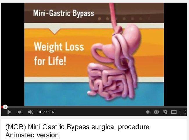 Here Is A Video On Mini Bypass Mini Gastric Bypass Surgery Mgb