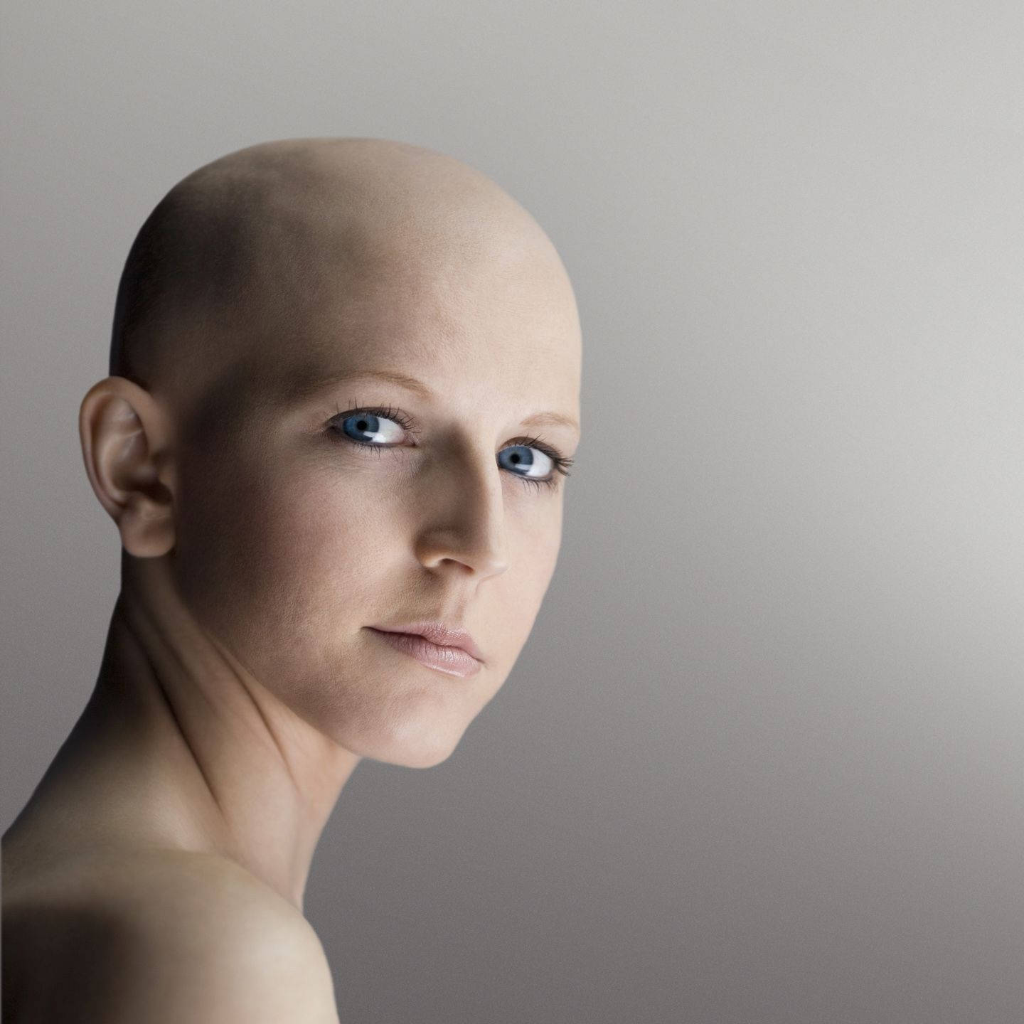 Bald girl, Cancer patients, Hair loss