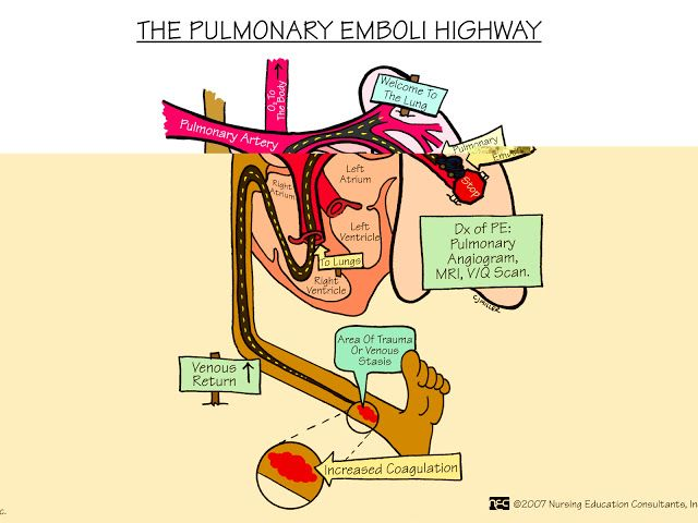 Nursing Mnemonics And Tips The Pulmonary Emboli Highway