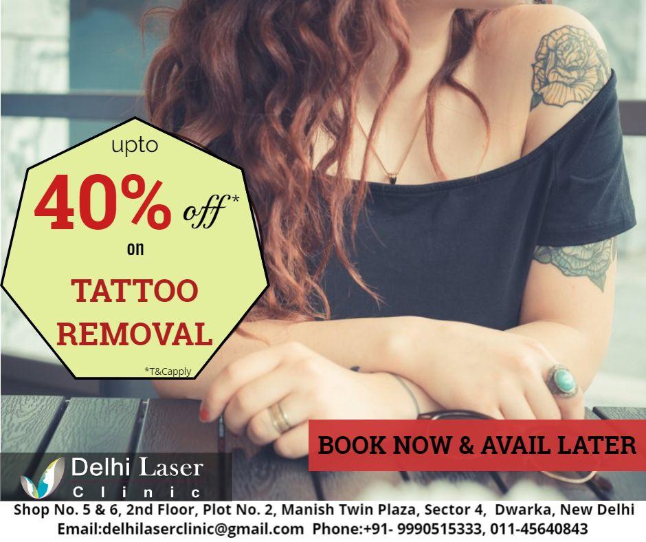Pin on tattoo removal in dwarka delhi