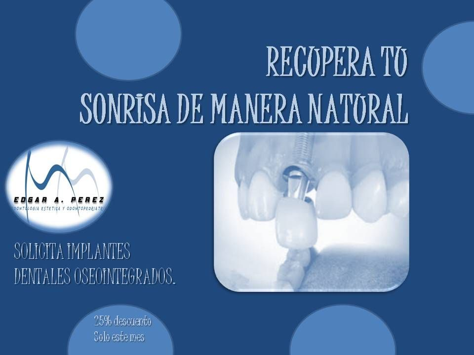 Utilice Implantes Dentales Es Seguro Con Imagenes Implantes