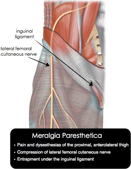 Dor meralgia paresthetica da joelho alívio