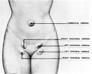 Femoral hernia | Things to Remember | Pinterest | Health ... Female Inguinal Hernia Anatomy