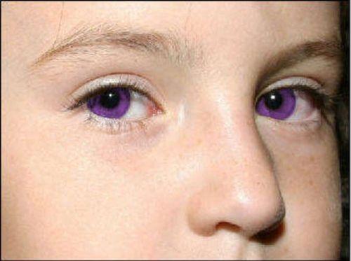 Extremely Rare Naturally Puple Eyes Eyes Pinterest