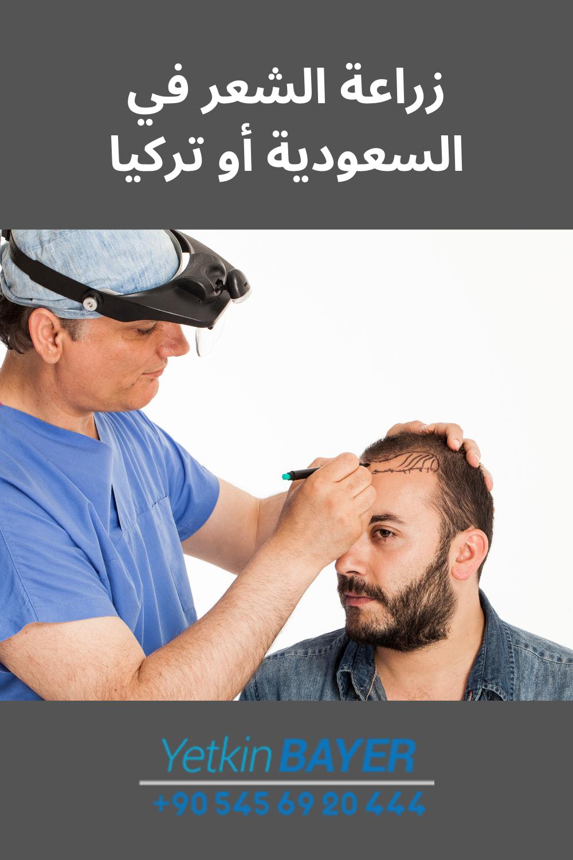 زراعة الشعر في السعودية أو تركيا