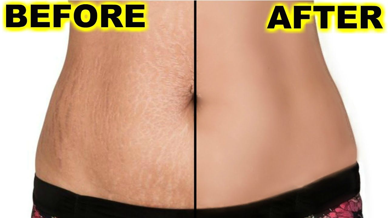 How To Get Rid Of Old White Stretch Marks Fast