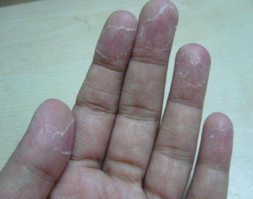 cracked skin on fingers fungus
