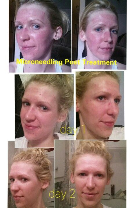 Microneedling Cit With Collagen P I N Microneedling Facial Procedure Skin