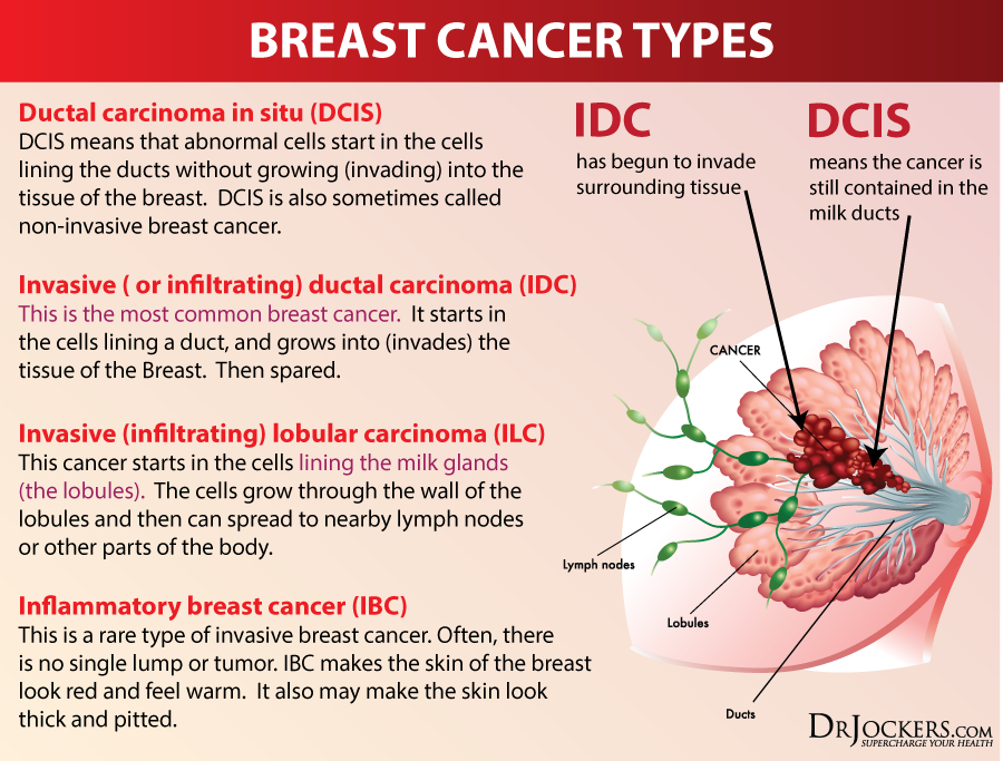12 Natural Strategies to Prevent Breast Cancer - DrJockers.com