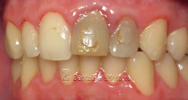 Pin on tooth wear - abrasion/erosion/abfraction