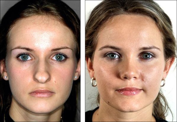 Photos Show How Much A Nose Job Can Change Your Face Makeup