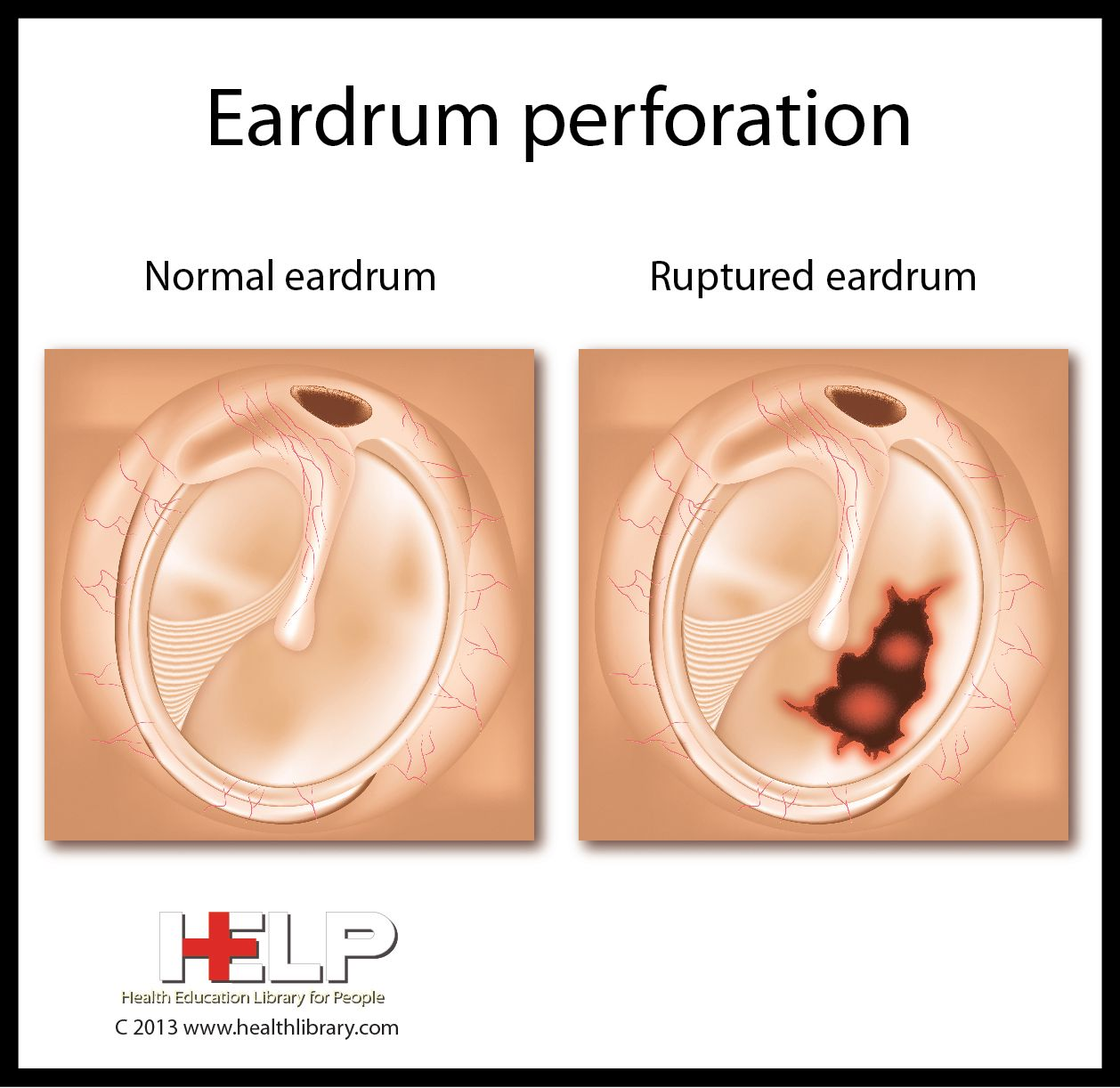 Eardrum Perforation | Human Anatomy Diseases Tests and Treatment ...