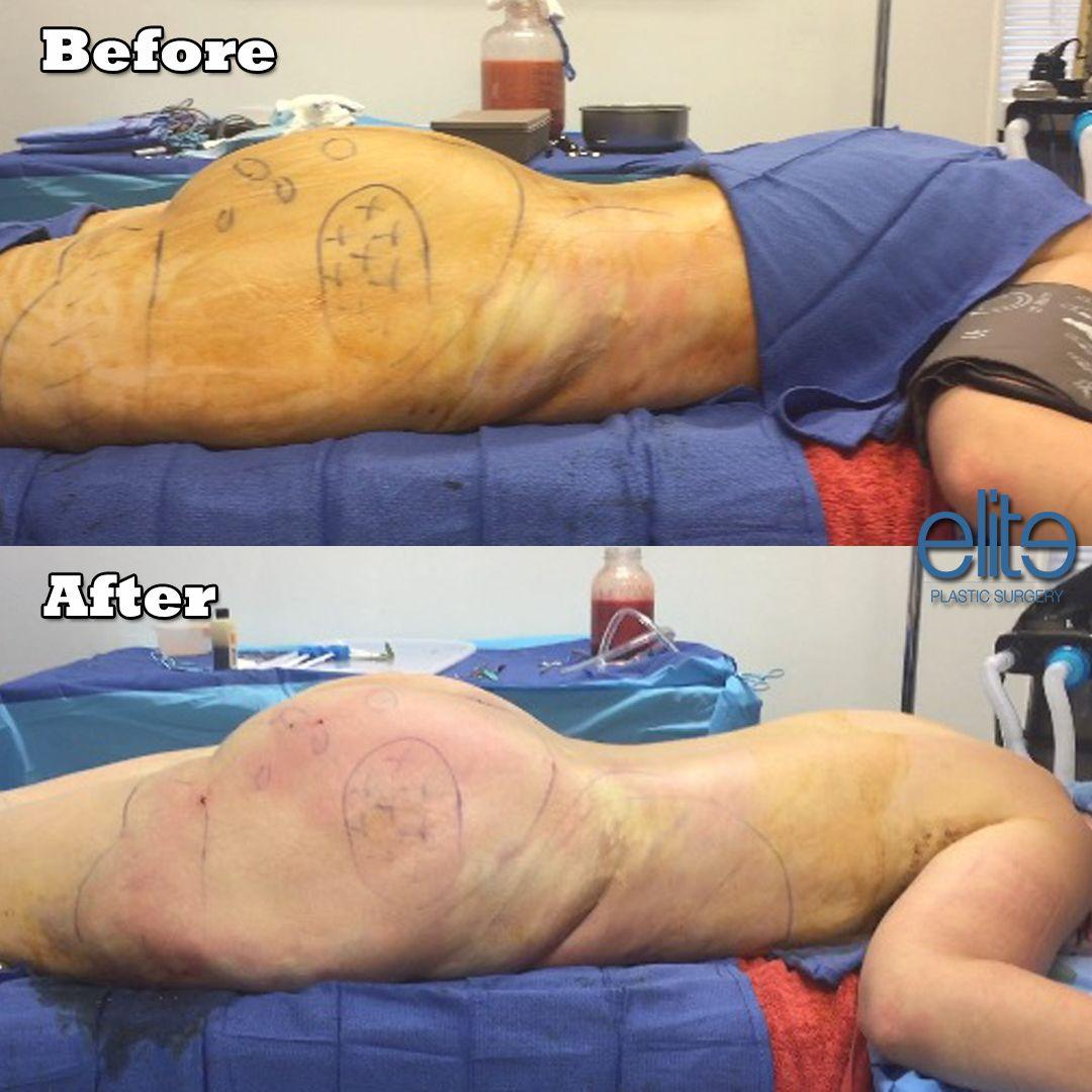 bbl #brazilianbuttlift #fattransfer #buttaugmentation