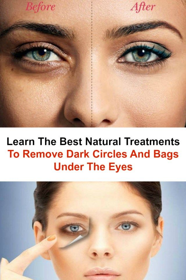 6cc4e33734f360335ce27e96fa9f1902 - How To Get Rid Of Tired Looking Eyes Naturally