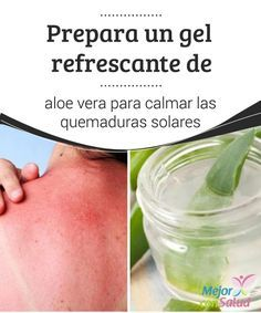 Gel De Aloe Vera Para Calmar Las Quemaduras Solares Quemaduras Solares Remedios Para Quemaduras Y Remedios Naturales