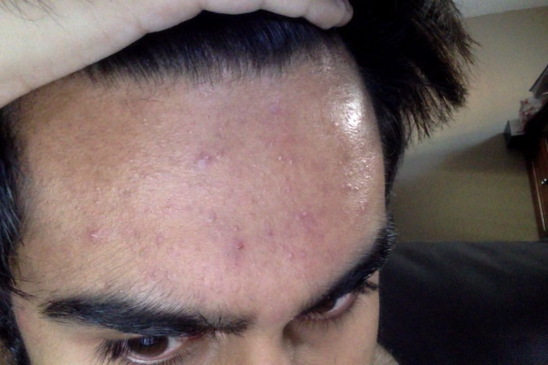 Acne Is This Fungal Acne Hormonal Acne Closed Comedones Or A Combination What Are The Measures I Can Take To Remedy This Acne I Hormonal Acne Skin Forehead
