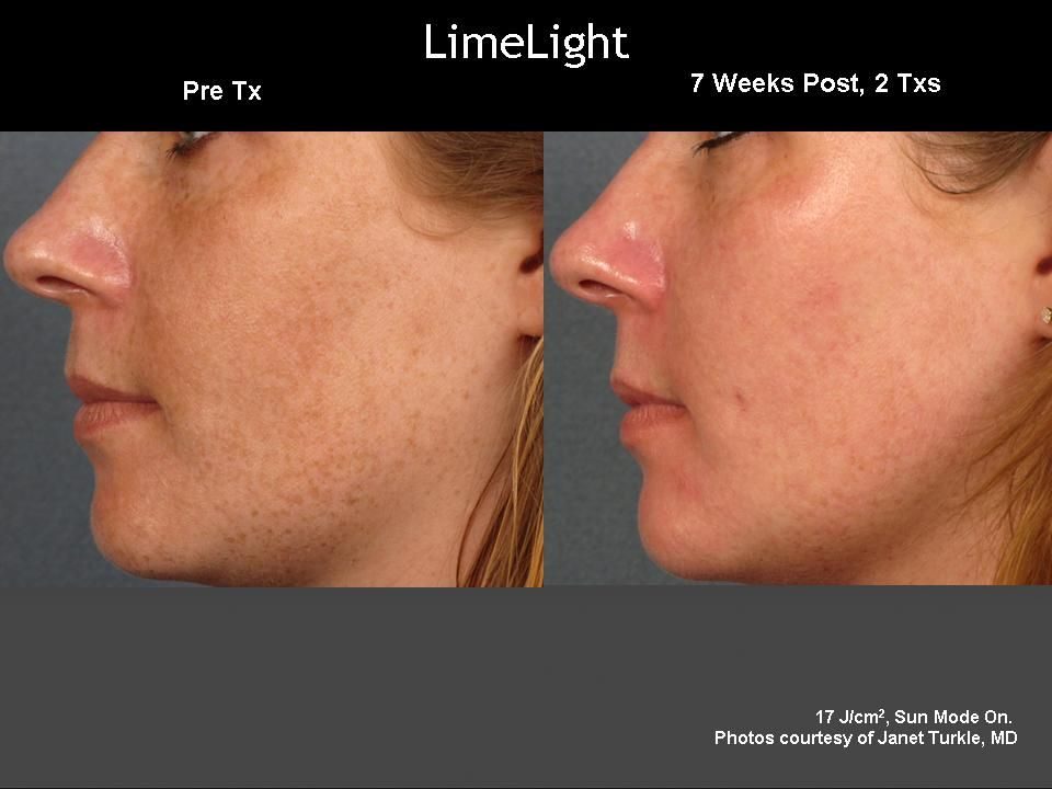 Cutera LimeLight IPL Treatment. Helps to remove all of those sunspots and  pigmentation marks from years of sun damage and acne scaring.