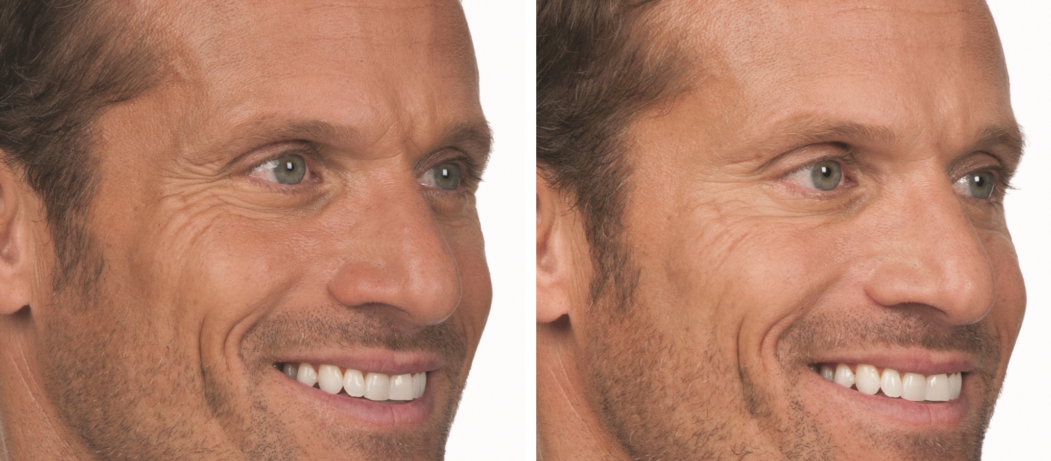 Botox for mens balls. Guys Are Injecting Botox Into Their ...