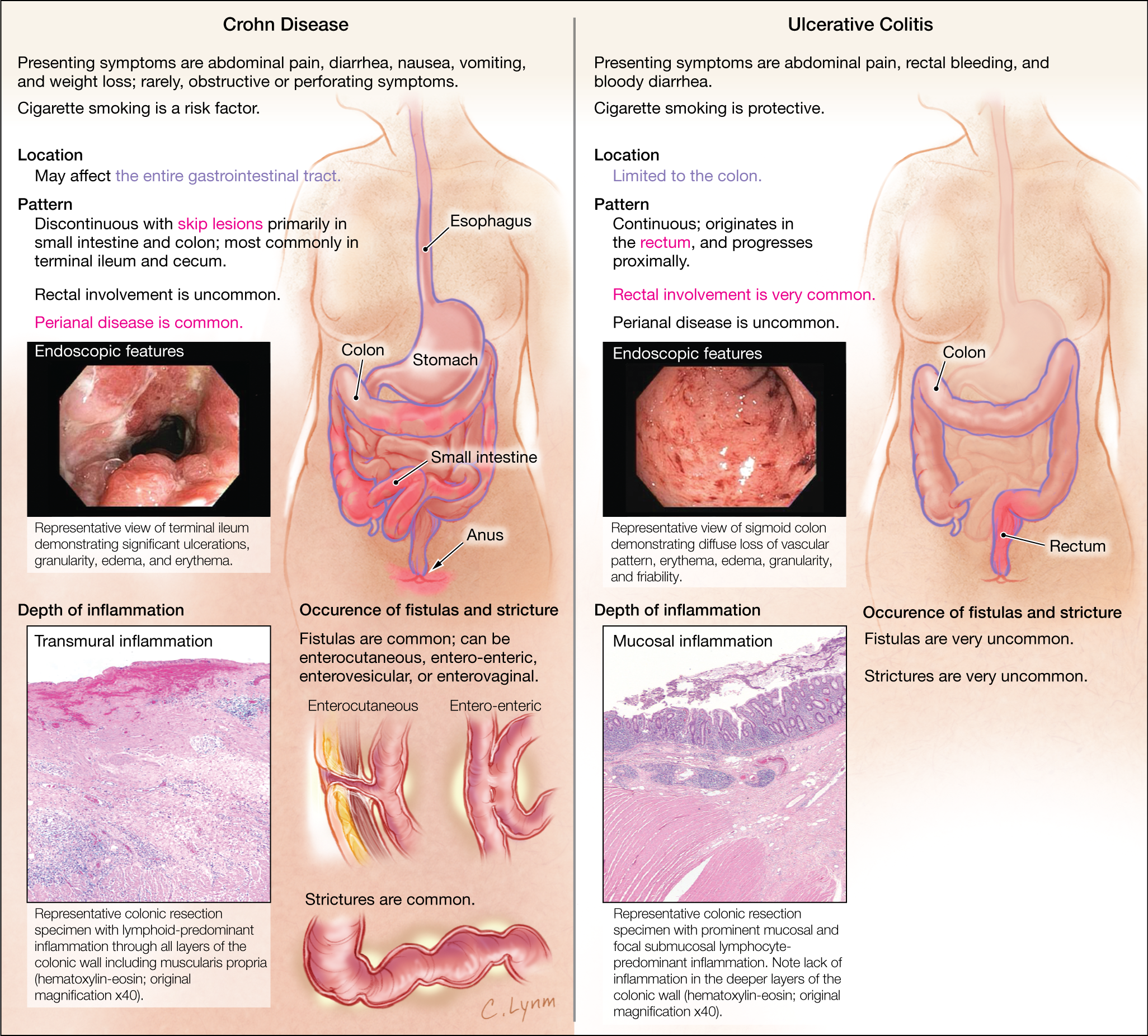 ulcerative colitis disease Ulcerative colitis is a chronic, or long-lasting, disease that causes inflammation and sores, called ulcers, in the inner lining of the large intestine, which includes the colon and the rectum - the end part of the colon.