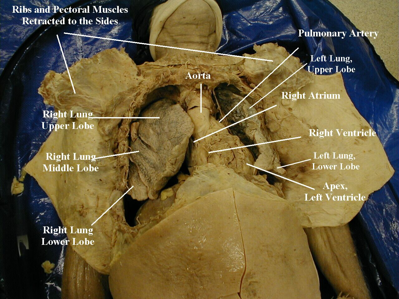 dissection of cadaver at medical school. Note that the body does not ...