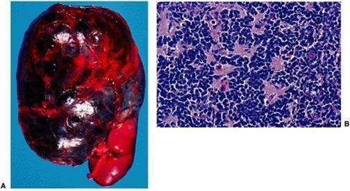 neuroblastoma - Google Search