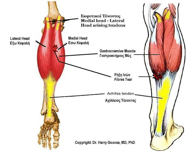 To limit the damage, a healthy Achilles tendon efficiently ... Soleus Muscle Pain Symptoms