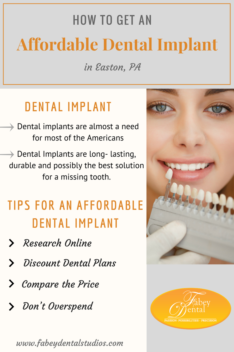 Handsomely Dental Implants Before And After Do You