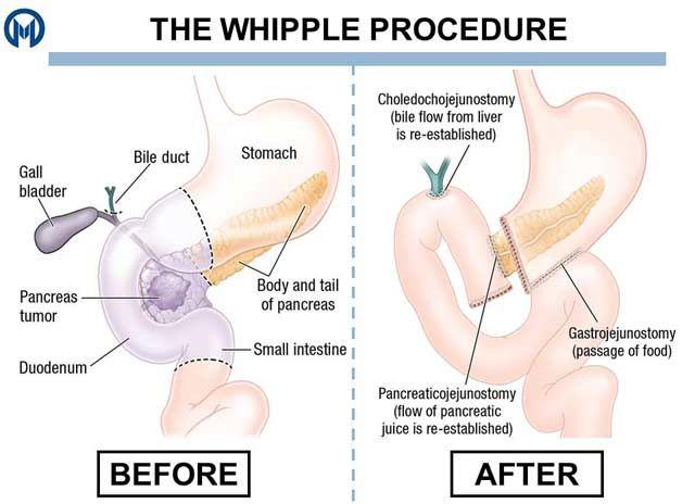Explain whipple procedure pancreas cancer