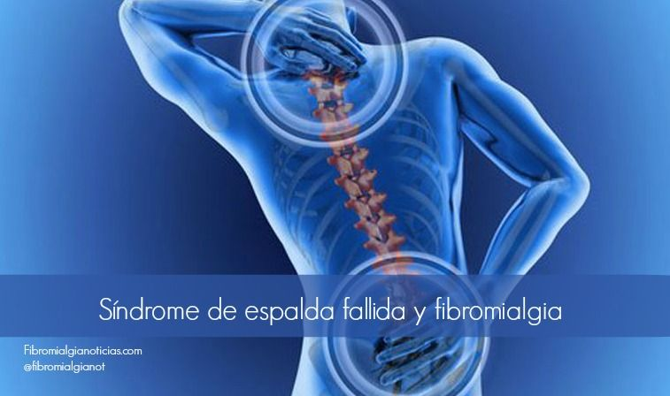 fibromialgia dolor de cadera uk