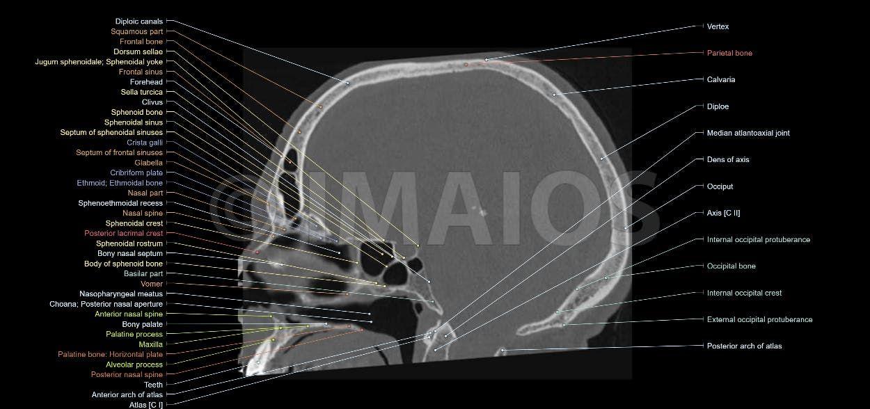Bones of cranium - Anatomy - CT: Sphenoid bone, Occipital bone ...