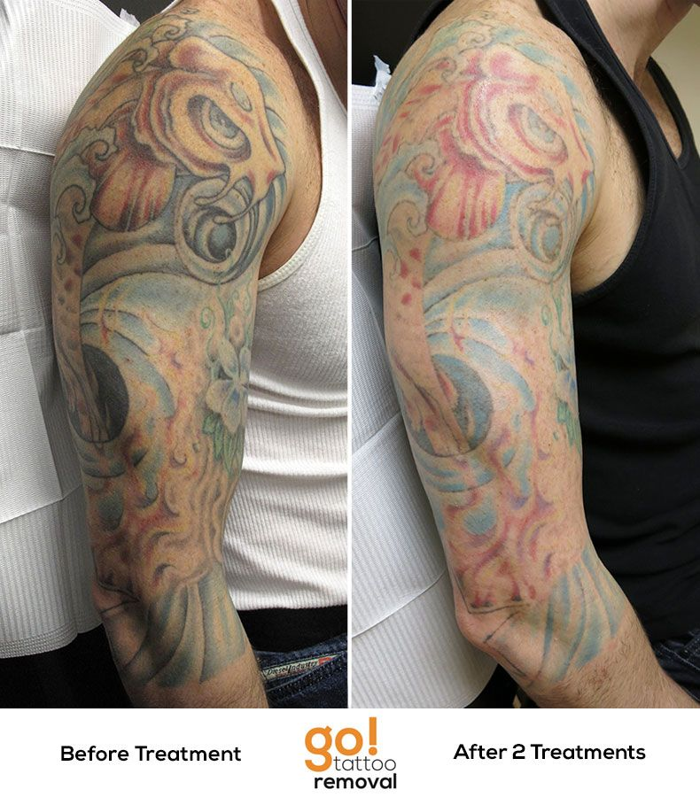 After a few years with this 3/4 sleeve the client decided
