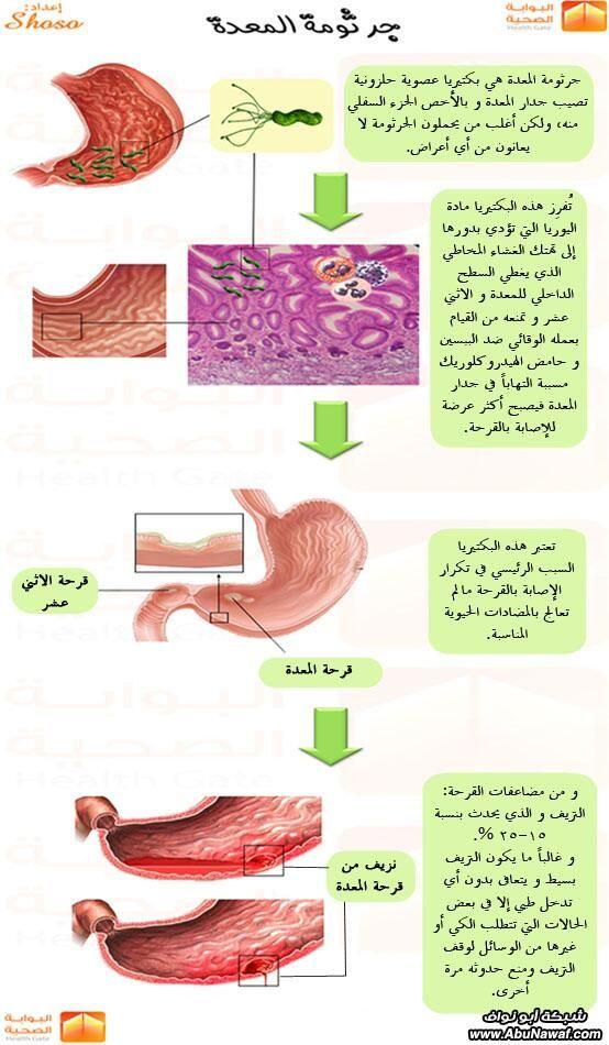 د سليمان حاجي Dr Hajji On Twitter Health And Beauty Tips Health And Nutrition Medical Words