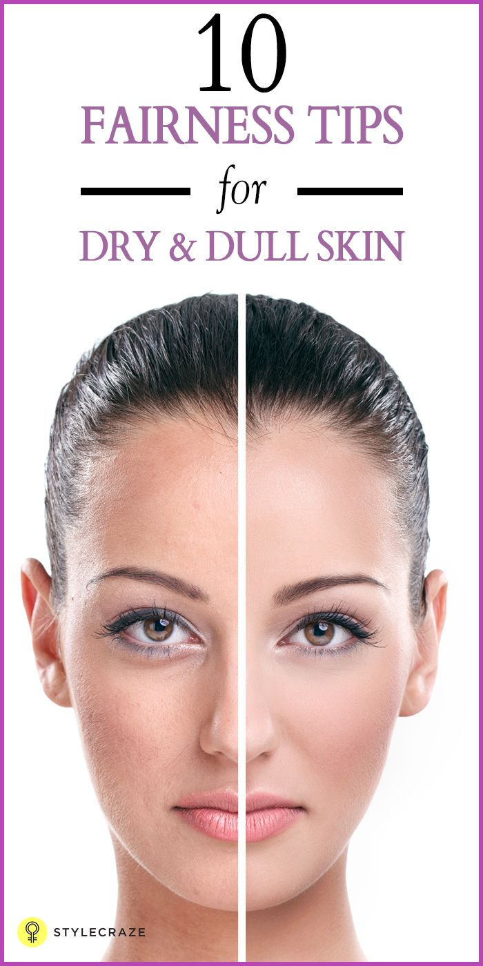 Top 10 Fairness Tips For Dry And Dull Skin Face Cream For Wrinkles Best Face Products Face Care Wrinkles