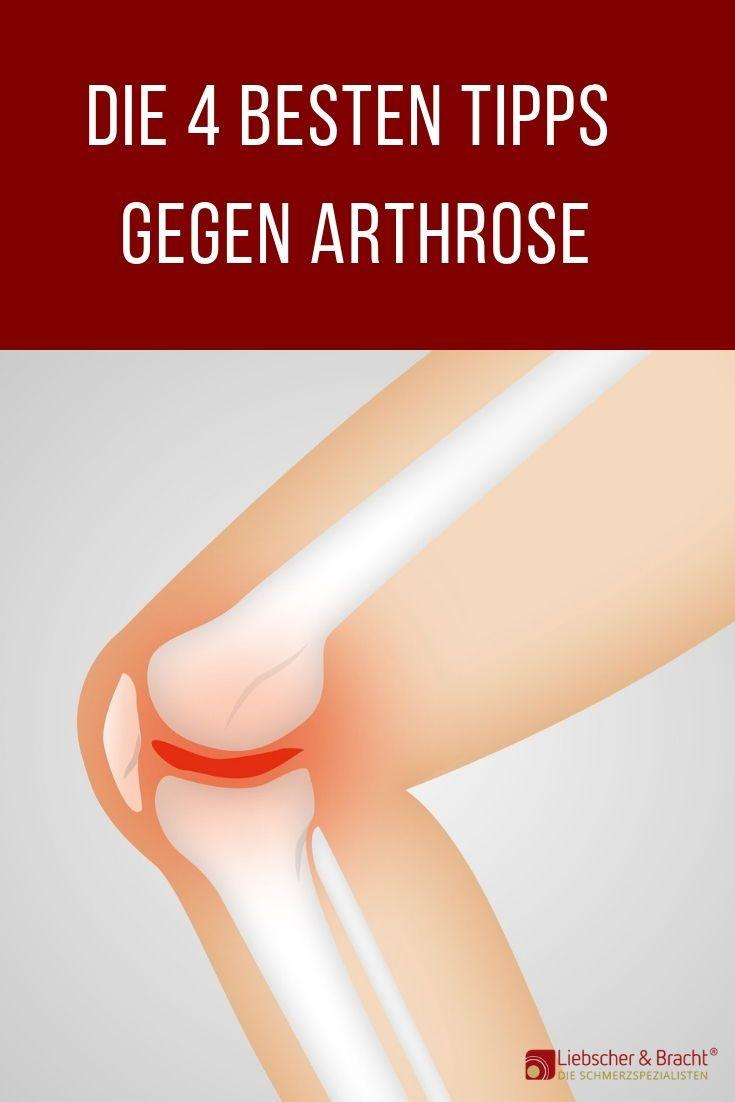 Photo of Die 4 besten Tipps gegen Arthrose